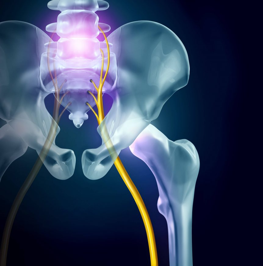 Sciatica Tucson Physical Therapist